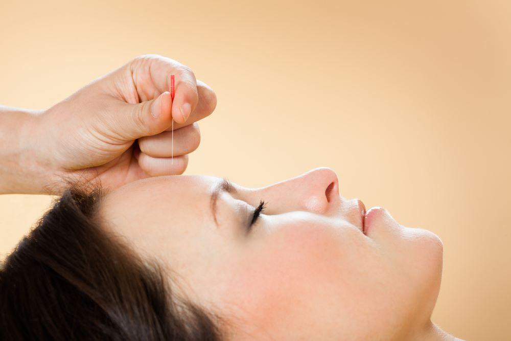 Acupunctura Clínica